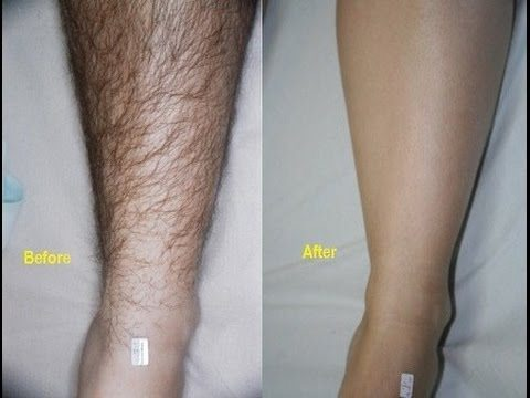 How To Remove Hair In Legs Naturally