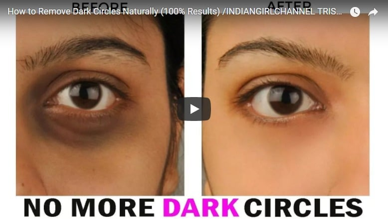 How to remove dark circles naturally