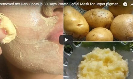 Dark spots removed in 30 days from potato facial mask