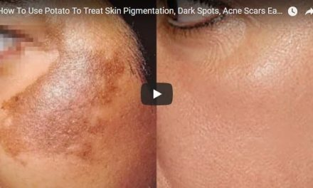 How to use potato to treat skin pigmentation, dark spots and acne scars