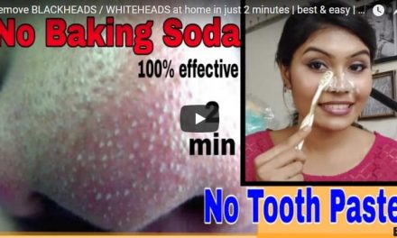 Remove black and whiteheads at home in just 2 minutes