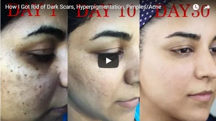hyperpigmentation and pimples