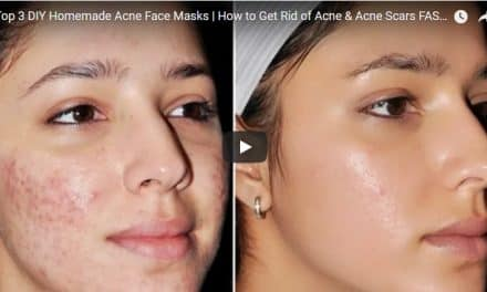 How to remove  face pigmentation ,dark spots,brown spots