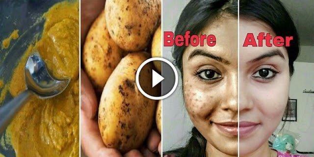 Remove dark spots