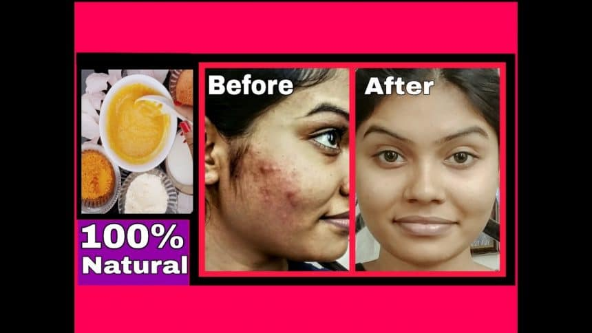 Remove dark spots from your face using all natural products