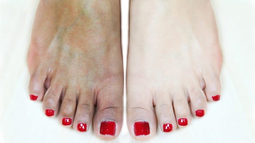 Feet whitening pedicure at home