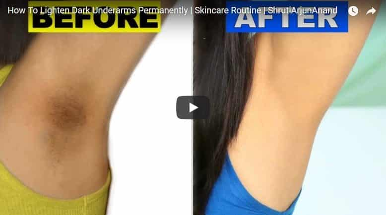 How to lighten dark underarms permanently
