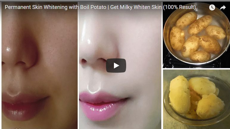 Permanent skin whitening with boil potato