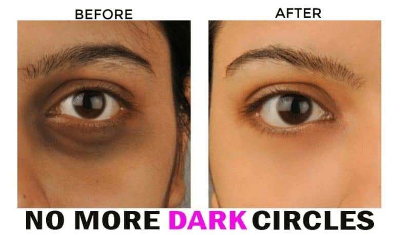 How To Get Rid Of Eyebags And Dark Circles Naturally