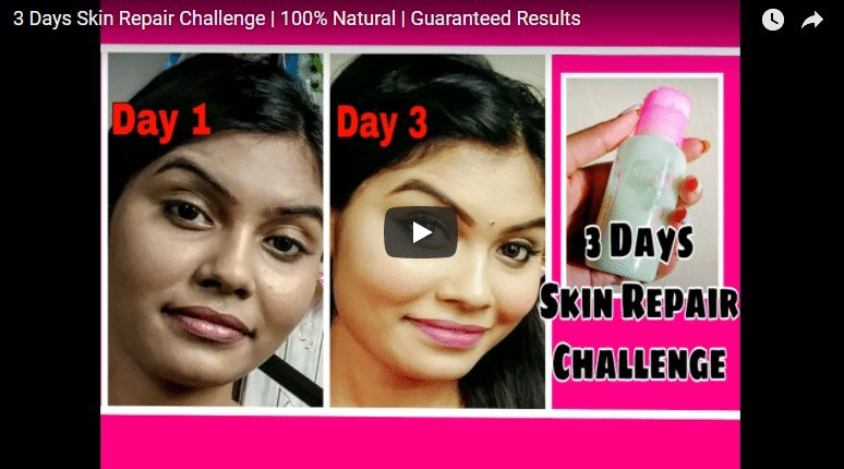 3 Days fairness challenge