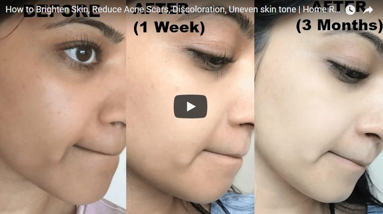 How to brighten skin,reduce acne scars,discoloration and uneven skin tone