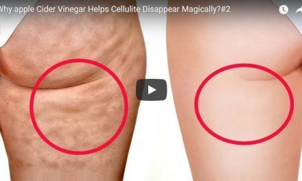 Why apple cider vinegar helps cellulite disappear magically?