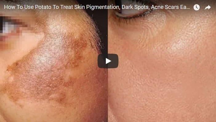 treat skin pigmentation, dark spots and acne scars