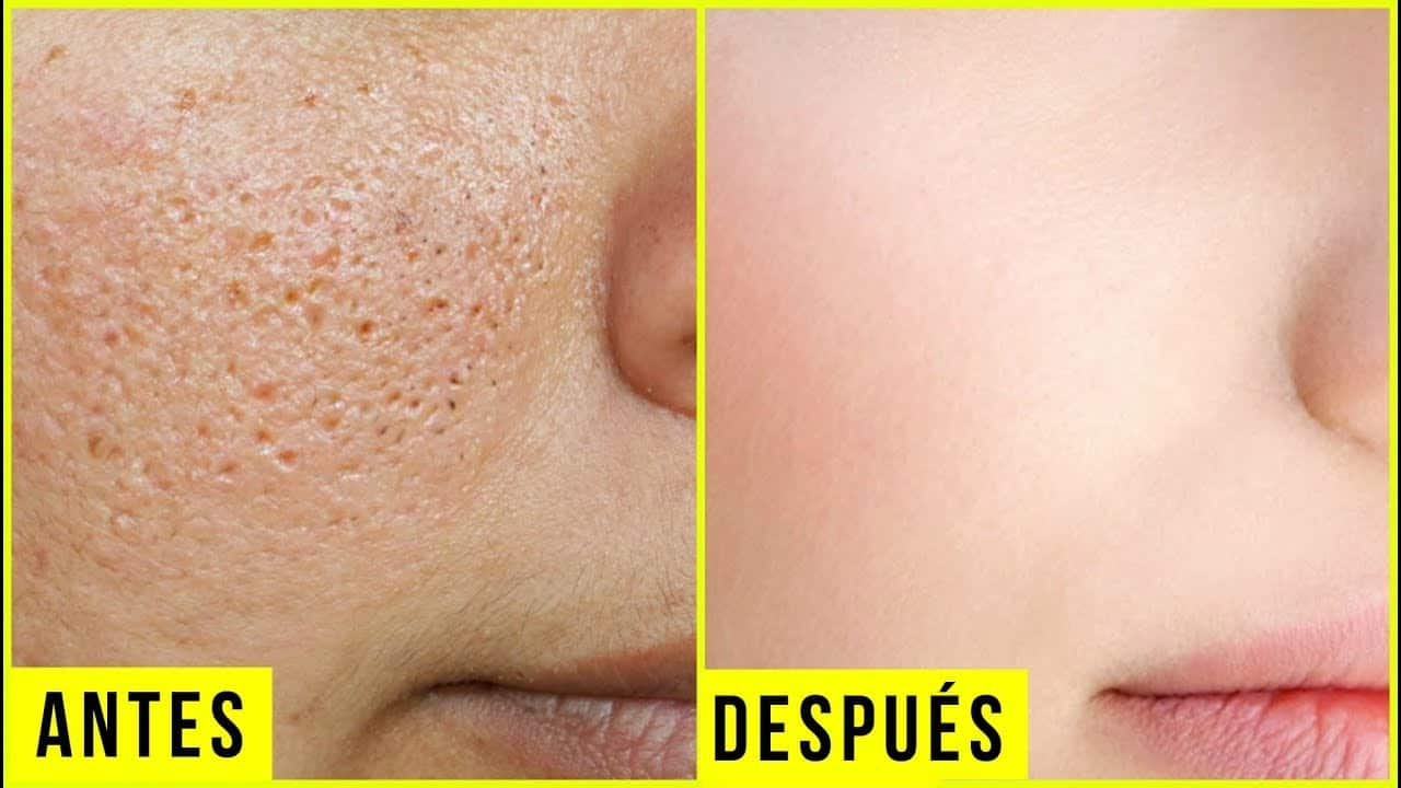 Large open pores