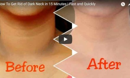 How to get rid of dark neck in 15 minute