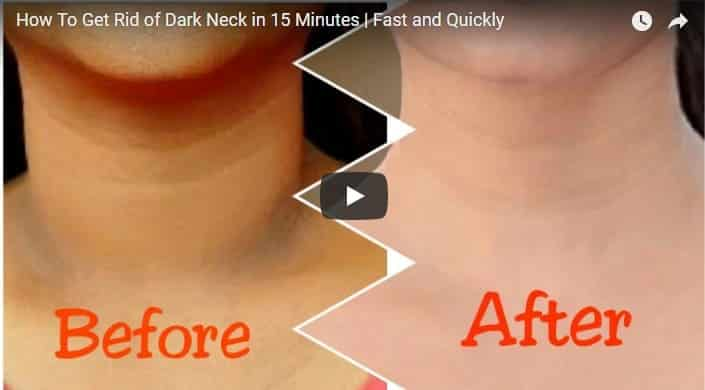 how to get rid of dark spots on skin fast