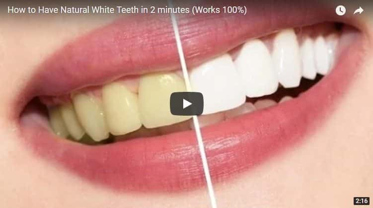 white teeth