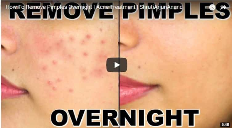 remove pimples overnight