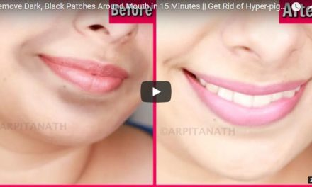 Remove dark black patches around mouth in 15 minutes