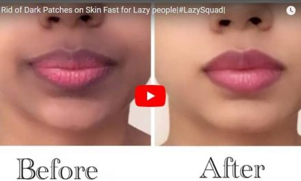Get rid of dark patches on skin fast for lazy people