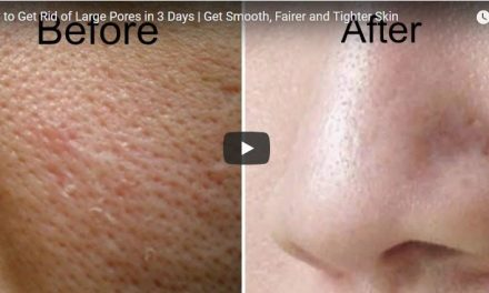 How to get rid of large pores in 3 days