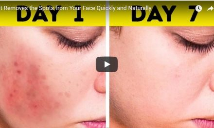 Removes the spots from your face quickly and naturally