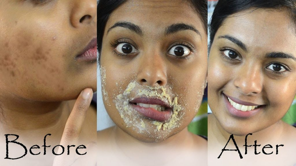 How To Lighten Dark Skin Around Mouth Naturally