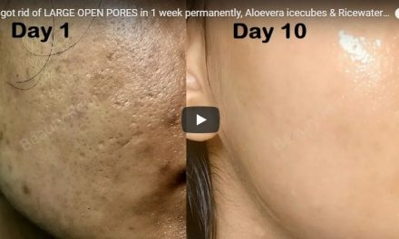 How got rid of large open pores in 1 week permanently
