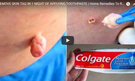 Remove skin tags in 1 night of applying toothpaste
