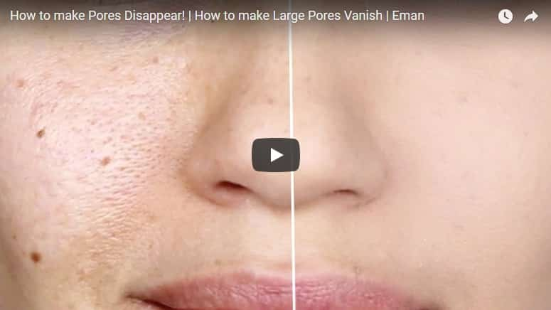 How to make large pores vanish