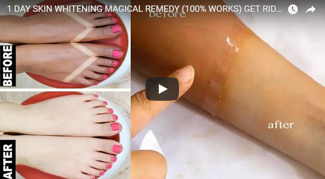 1 day skin whitening magical remedy