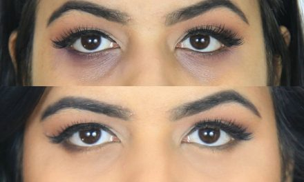How to get rid of dark circles with essential oils