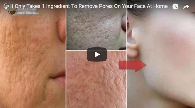 It Only takes 1 ingredient to remove pores on your face at home