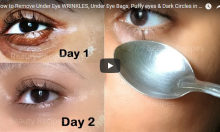 How to remove under eye wrinkles, under eye bags, puffy eyes and dark circles in 1 day with ice cubes