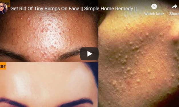 Get rid of tiny bumps on face