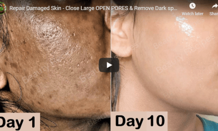 Repair damaged skin – close large open pores and remove dark spots